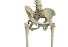 Revision Hip Replacement
